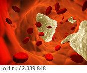 Купить «Атеросклероз», иллюстрация № 2339848 (c) Лукиянова Наталья / Фотобанк Лори