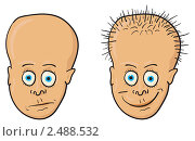 Купить «Иллюстрация - лысый человек и человек с растущими волосами», иллюстрация № 2488532 (c) pzAxe / Фотобанк Лори