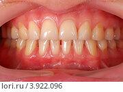 Человеческие зубы. Стоковое фото, фотограф Виталий Китайко / Фотобанк Лори