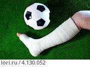 Купить «Нога в гипсе и футбольный мяч на зеленом газоне», фото № 4130052, снято 29 сентября 2011 г. (c) chaoss / Фотобанк Лори