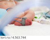 Купить «Нога ребенка в реанимации с пульсоксиметром», фото № 4563744, снято 13 апреля 2013 г. (c) Beerkoff / Фотобанк Лори