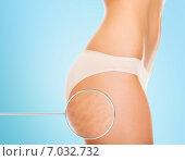 Купить «close up of woman buttocks with cellulite», фото № 7032732, снято 25 июля 2013 г. (c) Syda Productions / Фотобанк Лори