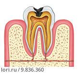 Купить «Tooth inner anatomy of a cavity», фото № 9836360, снято 20 марта 2018 г. (c) PantherMedia / Фотобанк Лори