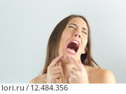 Купить «Girl crying while pressing a pimple on her chin», фото № 12484356, снято 14 марта 2018 г. (c) PantherMedia / Фотобанк Лори