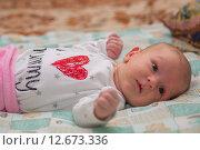 Купить «Гормональная сыпь у новорожденного», фото № 12673336, снято 14 января 2015 г. (c) Анастасия Улитко / Фотобанк Лори