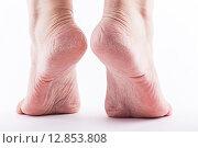 Сухая кожа пятки женщины крупным планом. Стоковое фото, фотограф Иван Траймак / Фотобанк Лори
