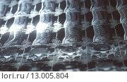 Снимок пояснично-крестцового отдела позвоночника. Стоковое фото, фотограф Ситнер Илья / Фотобанк Лори