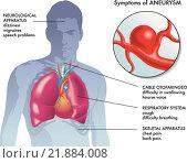 Купить «aneurysm symptoms», иллюстрация № 21884008 (c) PantherMedia / Фотобанк Лори