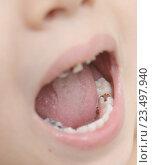 Купить «Детские молочные зубы с кариесом», фото № 23497940, снято 30 июля 2016 г. (c) Насыров Руслан / Фотобанк Лори