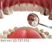 Купить «Human tooth with cariesand hole and tools. Dental searching concept. Teeth or dentures.», фото № 23737312, снято 22 мая 2018 г. (c) Maksym Yemelyanov / Фотобанк Лори