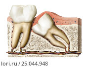 Купить «While growing, the wisdom teeth can remain under the gums or in the bone, or even pop up in an abnormal position.», фото № 25044948, снято 15 июля 2020 г. (c) age Fotostock / Фотобанк Лори