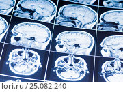 Купить «MRI of the brain. snapshot», фото № 25082240, снято 26 января 2017 г. (c) Сергей Лабутин / Фотобанк Лори