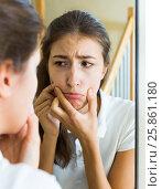 Girl squeezing pimple. Стоковое фото, фотограф Яков Филимонов / Фотобанк Лори
