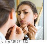 Купить «Girl squeezing pimple», фото № 28391132, снято 5 июля 2020 г. (c) Яков Филимонов / Фотобанк Лори