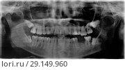 Купить «Панорамный рентгеновский снимок челюсти с ретинированными зубами мудрости», фото № 29149960, снято 15 октября 2018 г. (c) Алёшина Оксана / Фотобанк Лори