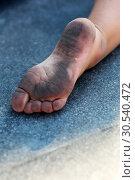 Dirty childs foot. Стоковое фото, фотограф Tryapitsyn Sergiy / Фотобанк Лори