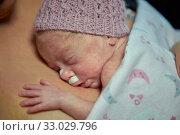 Купить «Mother with baby, mother-kangaroo method, Skin-to-skin contact, Neonatal pediatrics, Medical care, Neonate Intensive care Unit, UVI, ICU, Hospital Donostia...», фото № 33029796, снято 26 ноября 2019 г. (c) age Fotostock / Фотобанк Лори