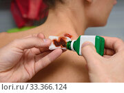 Купить «Antiseptic drug is applied on bandage to treat wounds on the girl's neck», фото № 33366124, снято 11 марта 2020 г. (c) Иванов Алексей / Фотобанк Лори