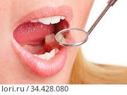 Junge Frau mit offenem Mund und Zahnarztspiegel an den Zähnen. Стоковое фото, фотограф Zoonar.com/Robert Kneschke / age Fotostock / Фотобанк Лори