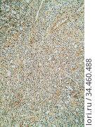 Actinomyces im Rinderkiefer Erkrankung unter dem Mikroskop 100x. Стоковое фото, фотограф Zoonar.com/Dr. Norbert Lange / easy Fotostock / Фотобанк Лори