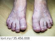 Feet of an elderly woman deformed as a result of gout. Стоковое фото, фотограф Дарья Филимонова / Фотобанк Лори