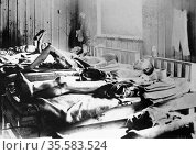 Survivors of the explosion of the Atom bomb at Hiroshima 1945 suffering... Редакционное фото, агентство World History Archive / Фотобанк Лори