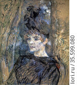 Portrait of Suzanne Valladon' 1885: Henri Toulouse Lautrec (1864-... Редакционное фото, агентство World History Archive / Фотобанк Лори