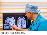 Доктор осматривает КТ головного мозга на мониторе. Стоковое фото, фотограф Beerkoff / Фотобанк Лори