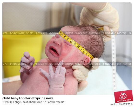 Форма головы у новорожденных норма фото