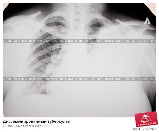 Диссеминированный туберкулез, фото № 305928, снято 1 июня 2008 г. (c) Doc... / Фотобанк Лори