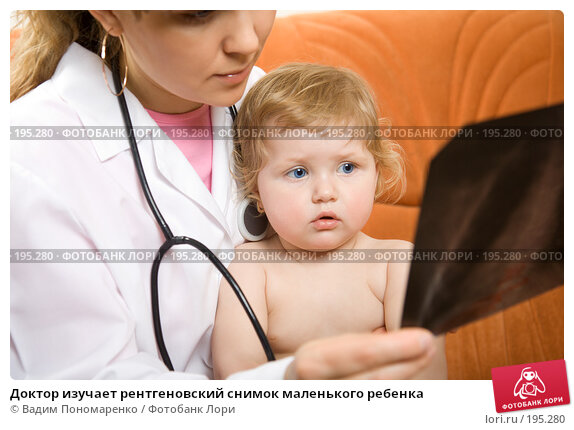 Доктор изучает рентгеновский снимок маленького ребенка, фото № 195280, снято 19 января 2008 г. (c) Вадим Пономаренко / Фотобанк Лори