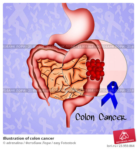 an analysis of colon cancer Carcinoembryonic antigen (cea) is a glycoprotein associated with colorectal cancer (crc) while the functions of its gene and protein have been fully characterized, its post-translational modifications in the context of crc development remain undefined.