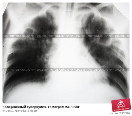 Кавернозный туберкулез. Томограмма. 1970г., фото № 297396, снято 24 мая 2008 г. (c) Doc... / Фотобанк Лори