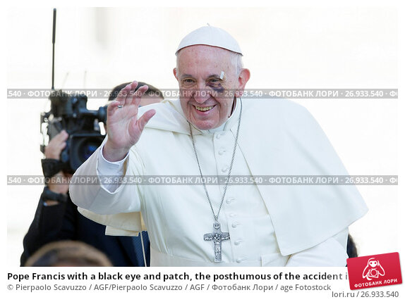 Pope Francis with a black eye and patch, the posthumous of the accident in Colombia General Audience in St. Peter Square, Vatican City. Vatican 13/09/2017., фото № 26933540, снято 13 сентября 2017 г. (c) age Fotostock / Фотобанк Лори