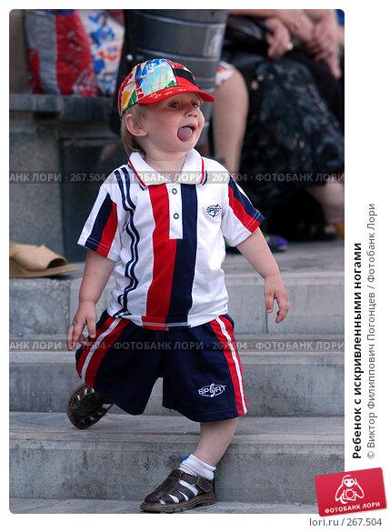 Купить «Ребенок с искривленными ногами», фото № 267504, снято 27 мая 2005 г. (c) Виктор Филиппович Погонцев / Фотобанк Лори