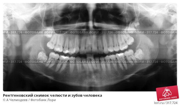 Рентгеновский снимок челюсти и зубов человека, фото № 317724, снято 26 февраля 2017 г. (c) A Челмодеев / Фотобанк Лори