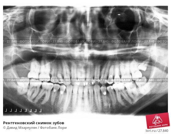 Рентгеновский снимок зубов, фото № 27840, снято 24 апреля 2017 г. (c) Давид Мзареулян / Фотобанк Лори