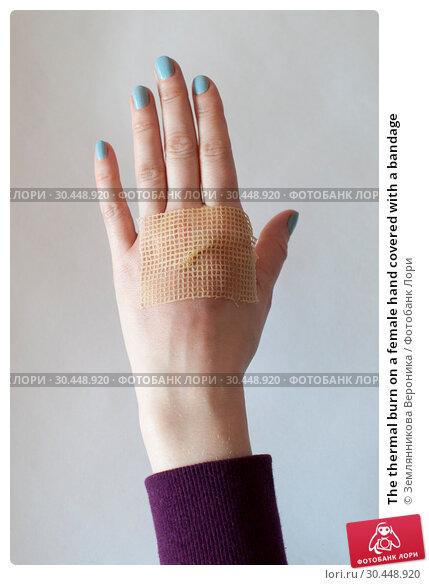 Купить «The thermal burn on a female hand covered with a bandage», фото № 30448920, снято 31 марта 2019 г. (c) Землянникова Вероника / Фотобанк Лори